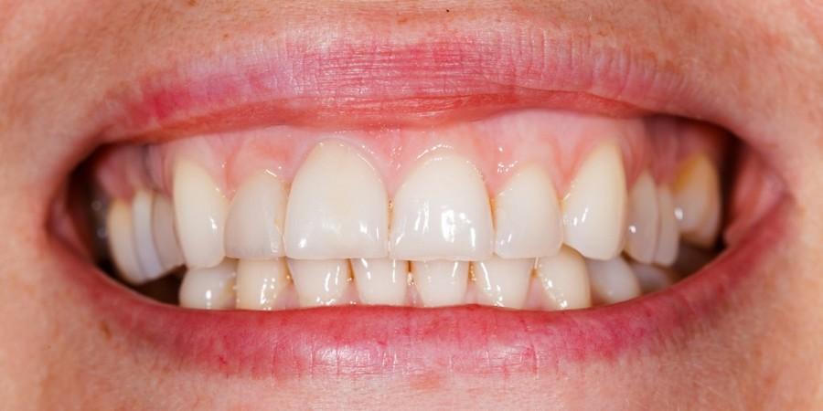 что такое окклюзия зубов