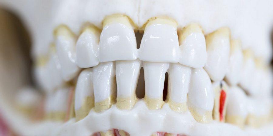 Профилактика периодонтита как поддерживать зубы и десна здоровыми