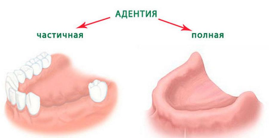 Виды адентии у зубов