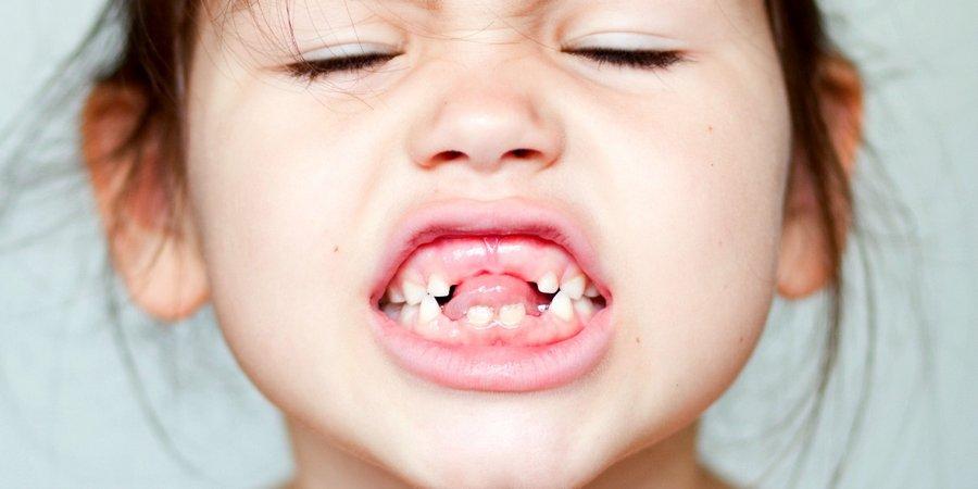 первичная адентия в раннем возрасте