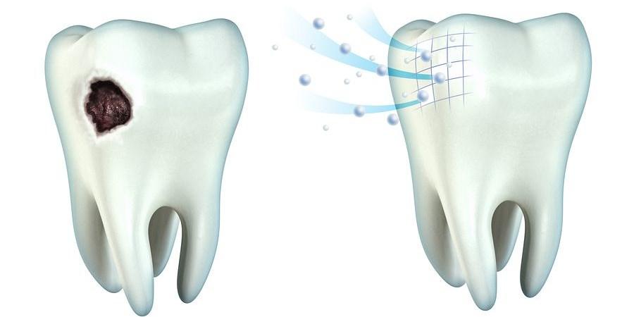 ремотерапия зубов
