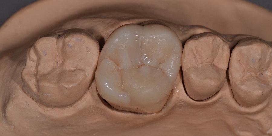 верхняя шестерка зуб