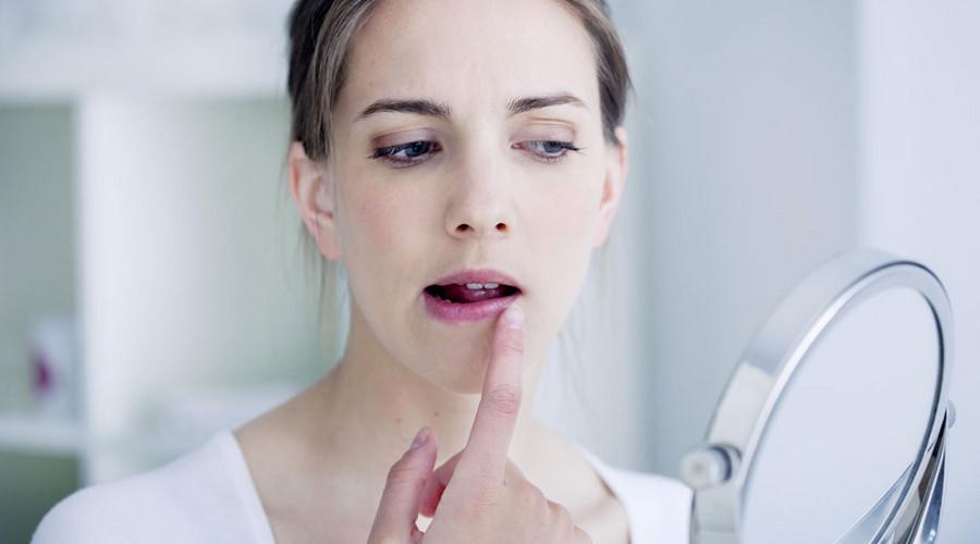 хейлит на губах у взрослых