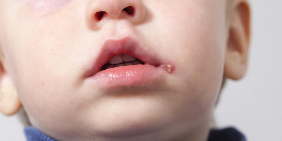 особенности ангулита у детей