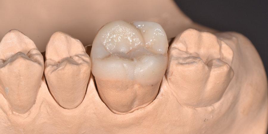 нижняя шестерка зуб