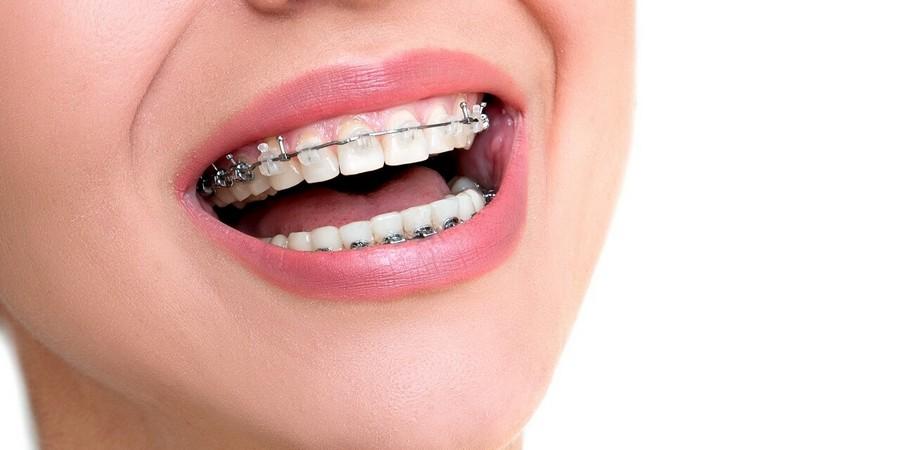 брекеты позволяют выровнять зубы