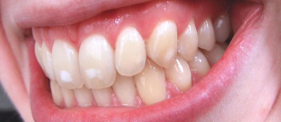 Что такое гипоплазия зубов