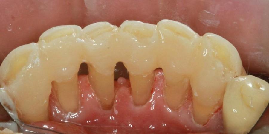 Укрепление десен при пародонтозе, пародонтоз шатается зуб (фото)