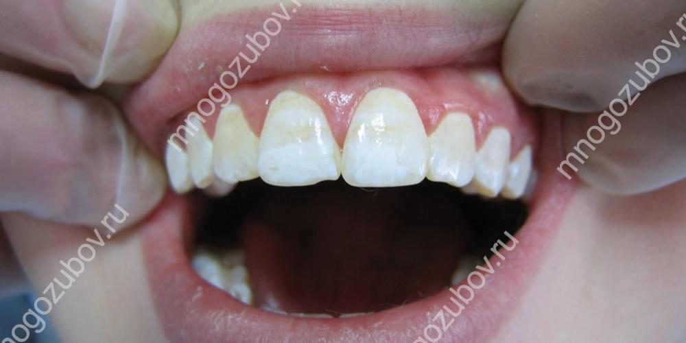 Фото: Гипоплазия эмали зубов