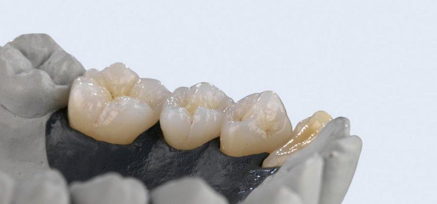 как восстанавливают зубы протезированием