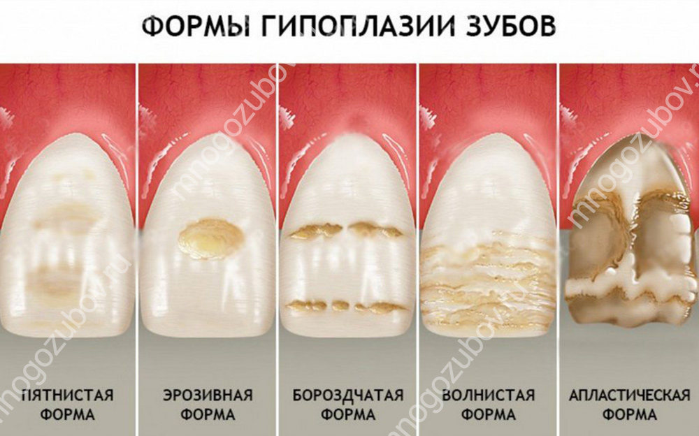 Формы гипоплазии на зубах