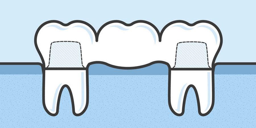 что такое зубной мост