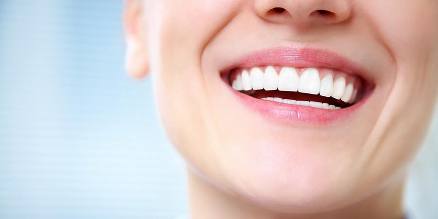 отбеливание зубов как решение проблемы