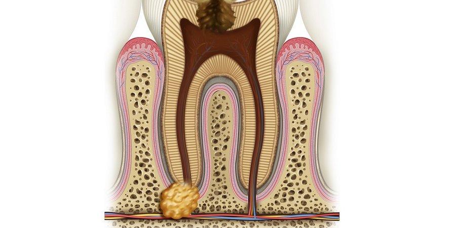 Гранулема на корне зуба — симптомы, фото, лечение антибиотиками и народными средствами