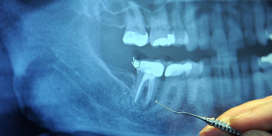 киста зуба под коронкой