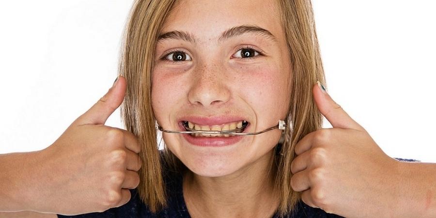 что такое лицевая дуга в ортодонтии