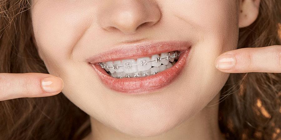 Можно ли пломбировать зубы при брекетах