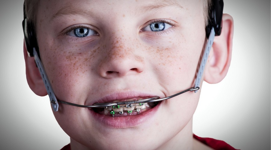 фото: установленная ортодонтическая дуга