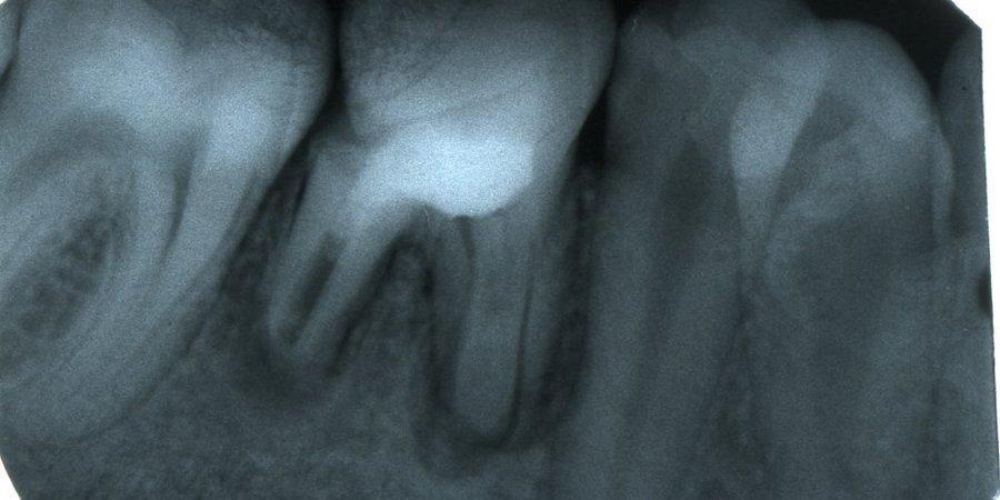 рентген снимок воспаления надкостницы зуба