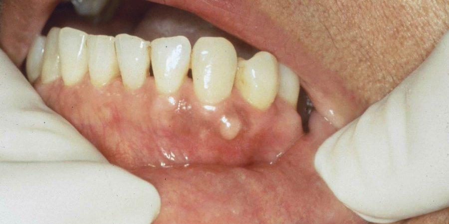 осложнения при развитии кисты зуба под коронкой