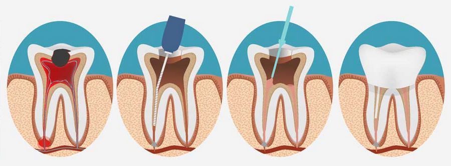 Лечение каналов зубов эндодонтия thumbnail