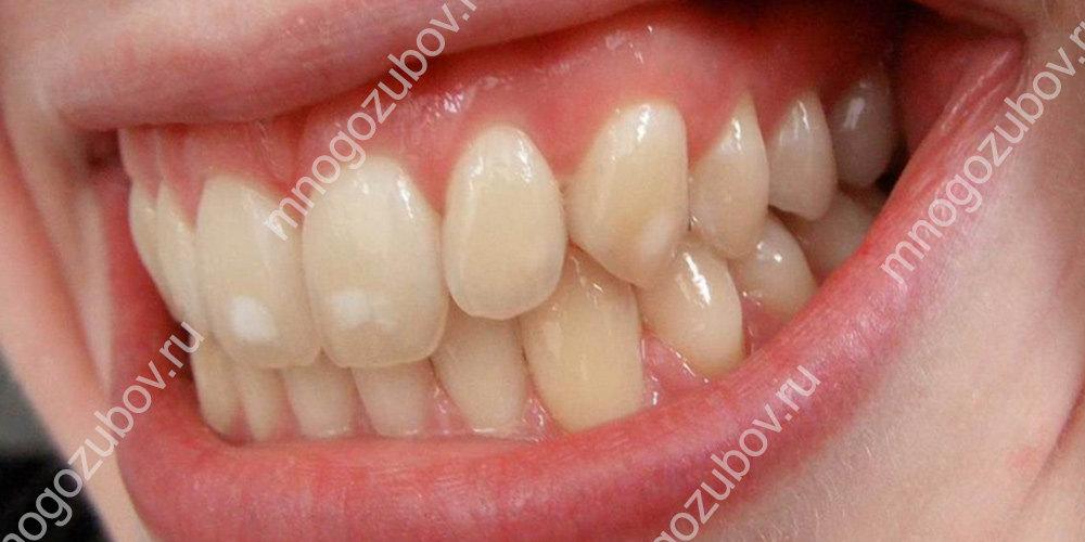 как выглядят белые пятна на зубах
