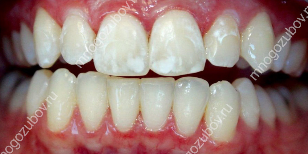 фото пример появления белых пятен на зубах