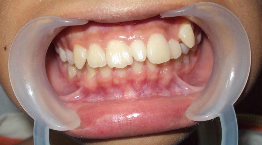 ретинированный зуб рядом с молочным