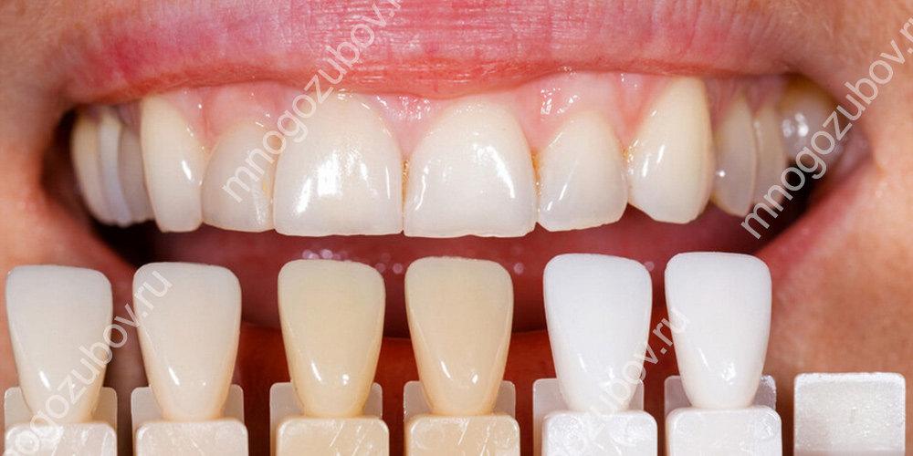 установка виниров при флюорозе зубов
