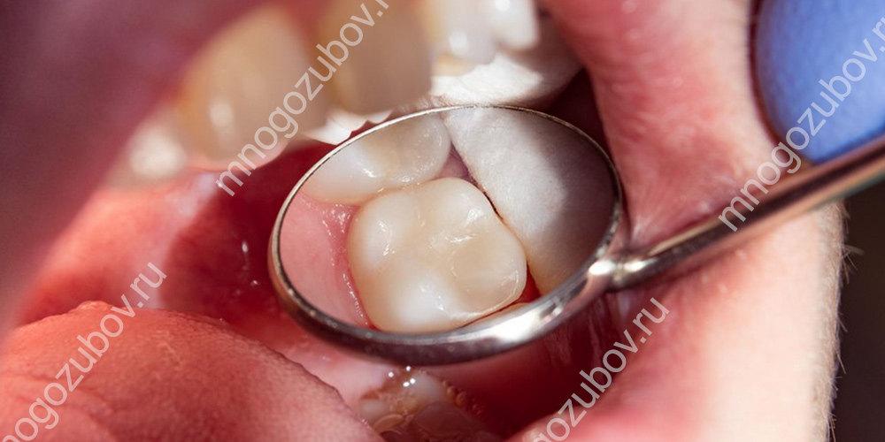 установка зубной пломбы результат