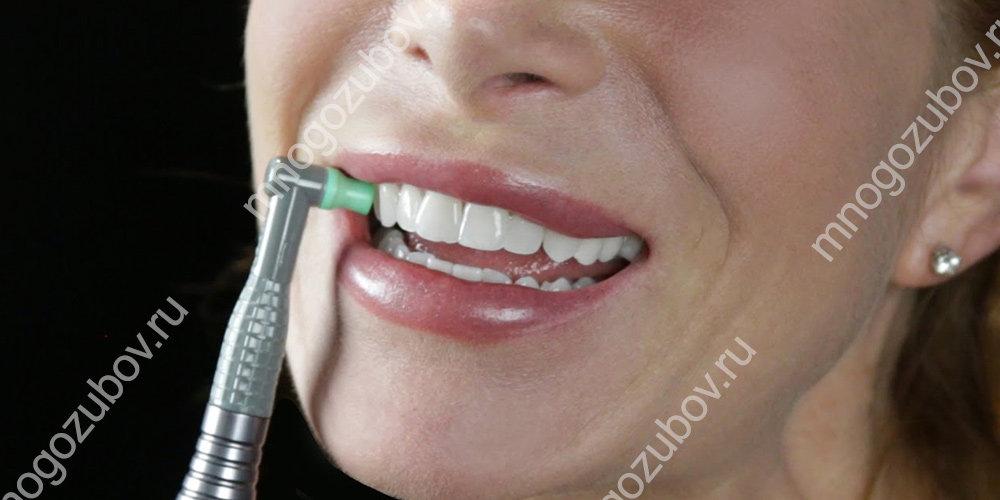 что такое полировка зубов