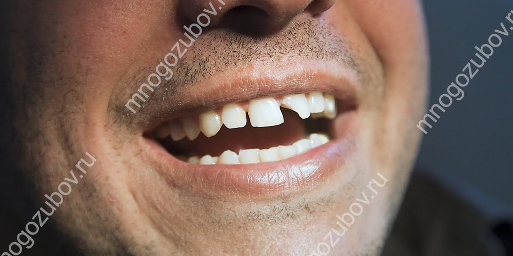 сломался передний зуб как наростить