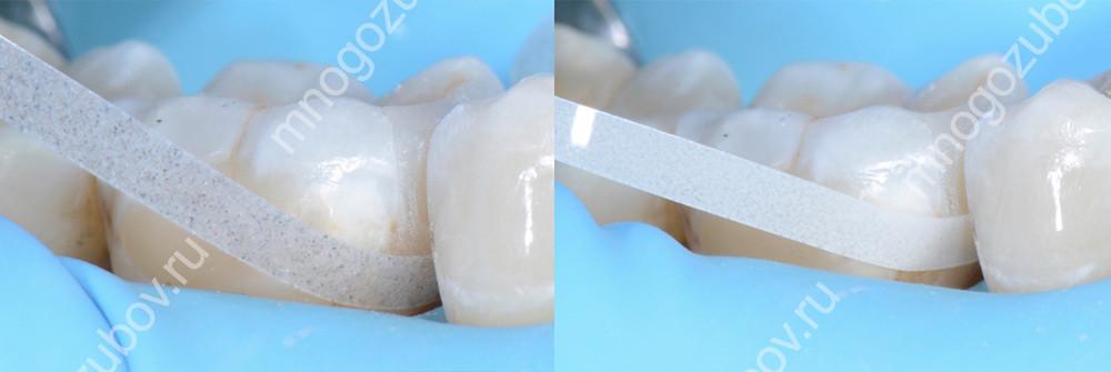 чем пришлифовываются зубы после пломбировки