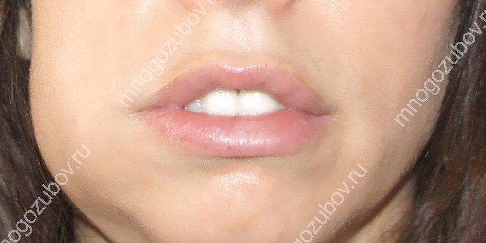 после удаления зуба возникает флегмона