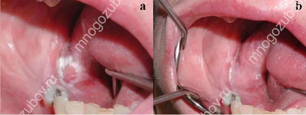 лечение лейкоплакии: фото до и после