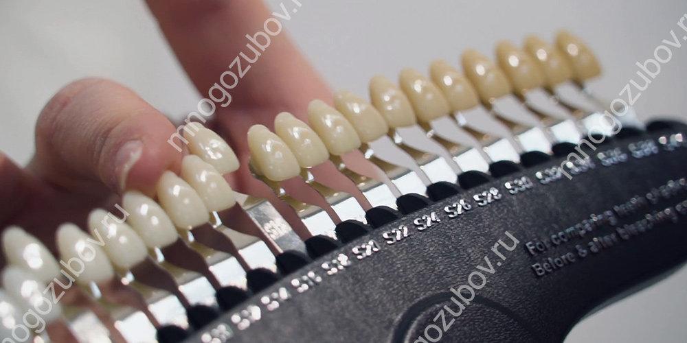 как подбирается цвет зуба