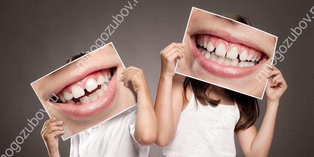 Как выглядит правильный прикус зубов у человека?