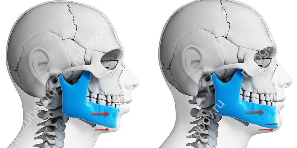 как лечится прикус хирургическими методами