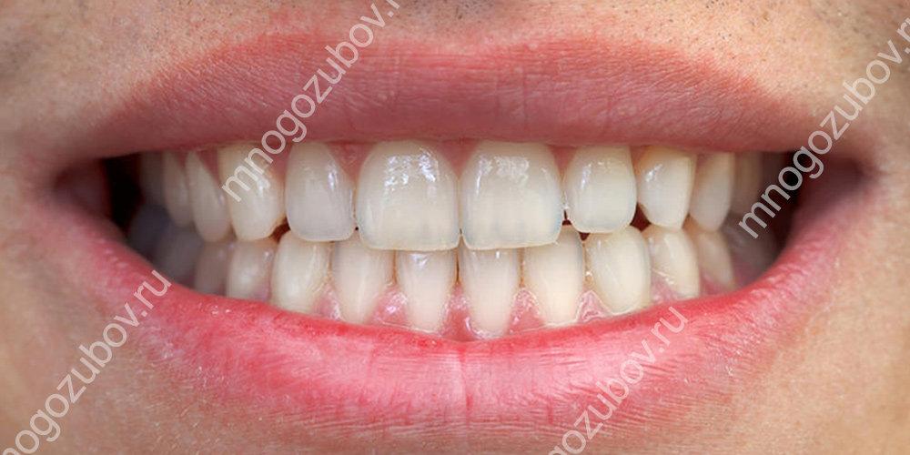 как выглядит правильный прикус зубов фото