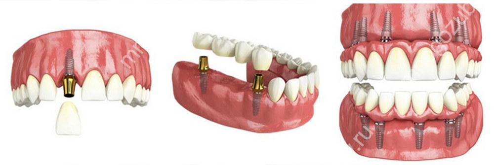 Типы одноэтапной имплантации зубов