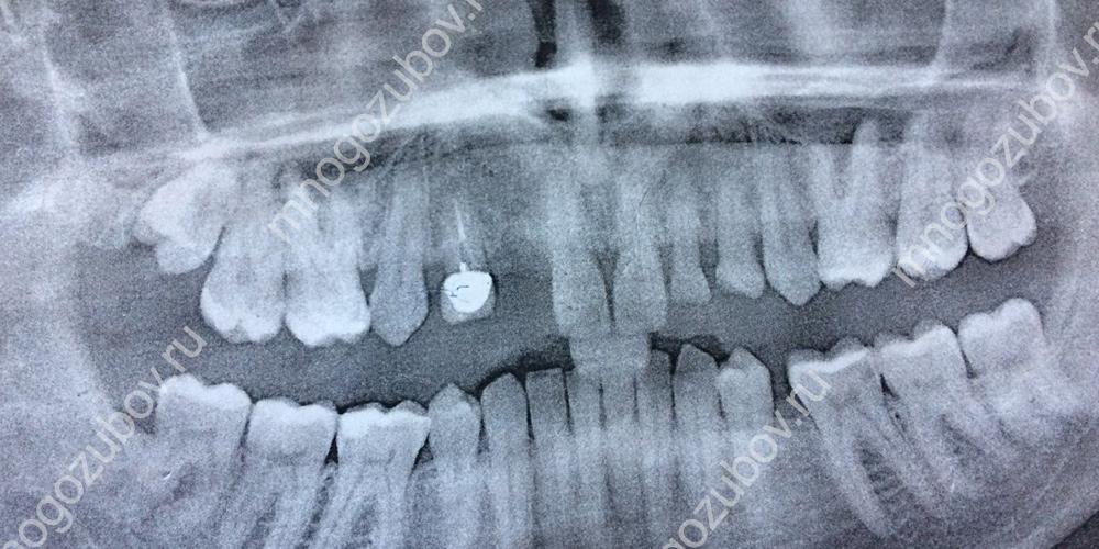 Проведение рентгена для диагностики отсутствия зуба