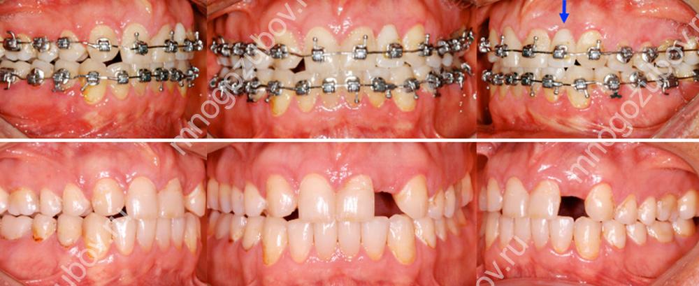 Ортодонтическое лечение если нет резца