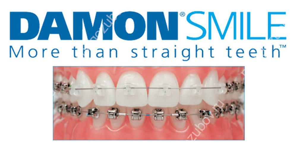 American orthodontics брекеты или damon