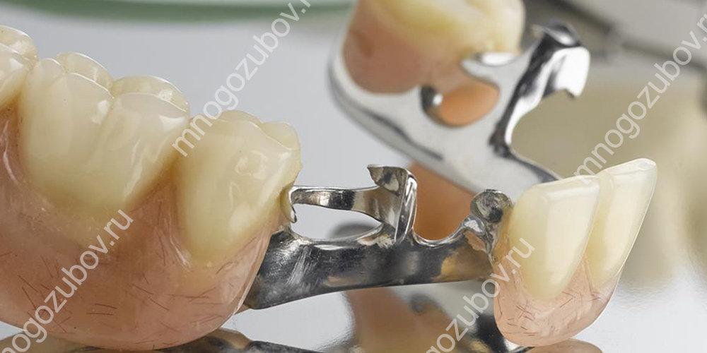 фото бюгельного протеза на аттачментах