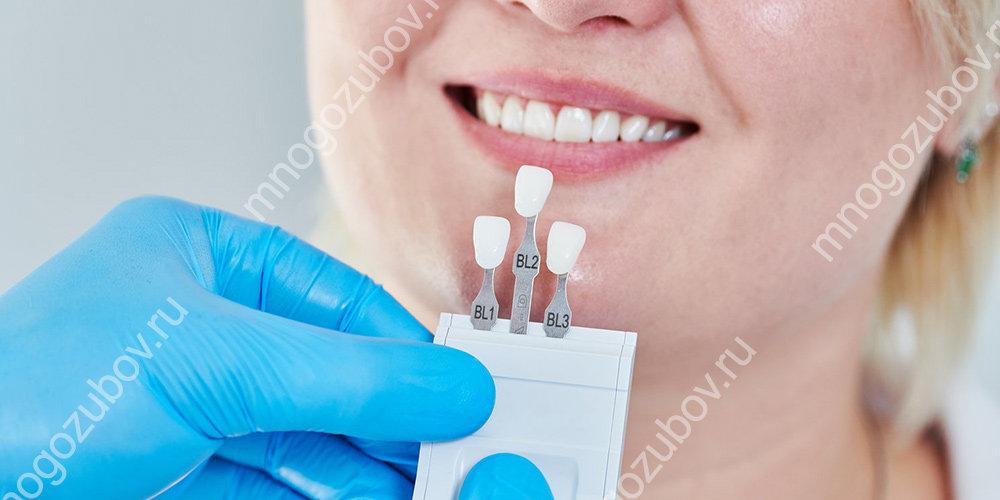 для чего устанавливаются виниры на зубы
