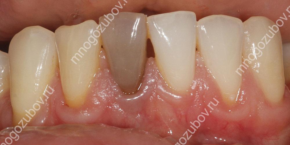 темный зуб на нижней челюсти