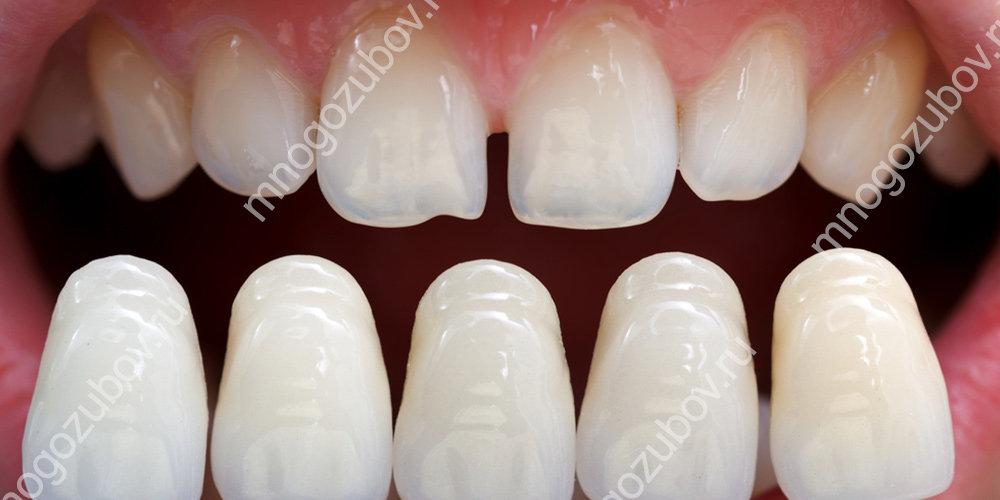 обточенные зубы и подбор цвета виниров