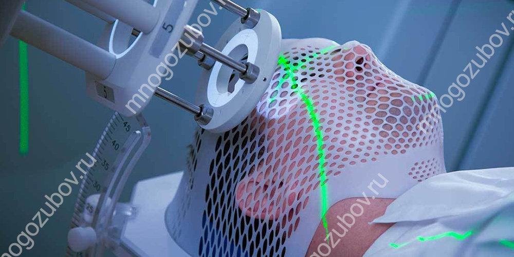 проведение лучевой терапии при развитии рака на деснах