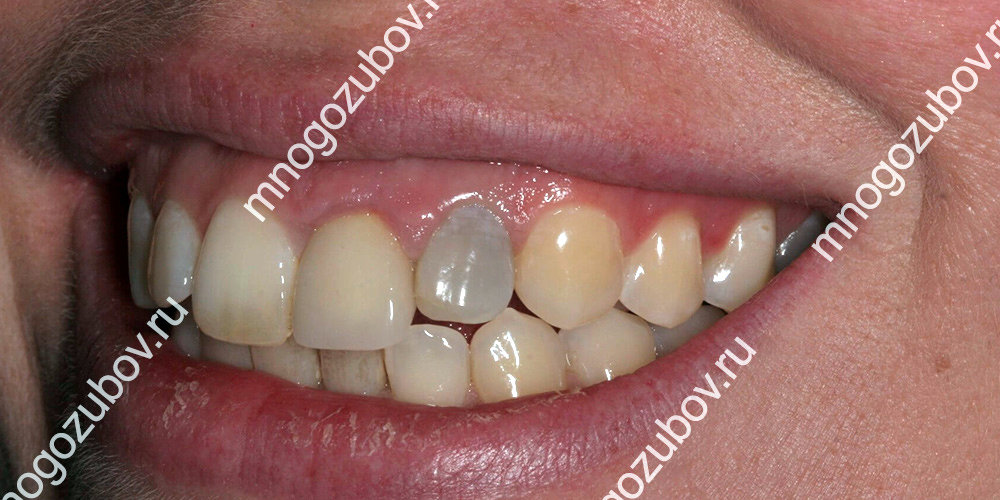 Как вылечить потемнение зубов thumbnail