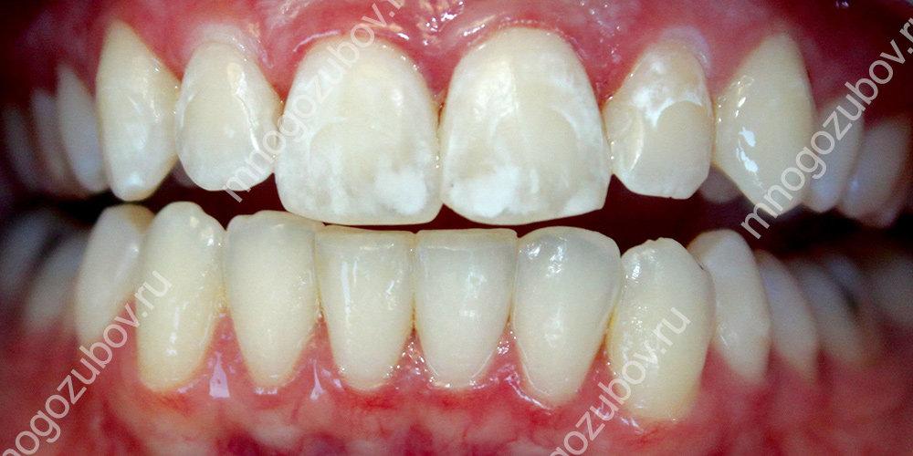 флюороз зубов и их цвет